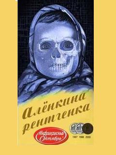 Картинка Шоколадка Алёнкина рентгенка
